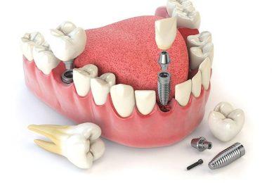 Avant d'effectuer la pose d'implant dentaire, n'hésitez pas à faire quelques vérifications, notamment concernant le remboursement